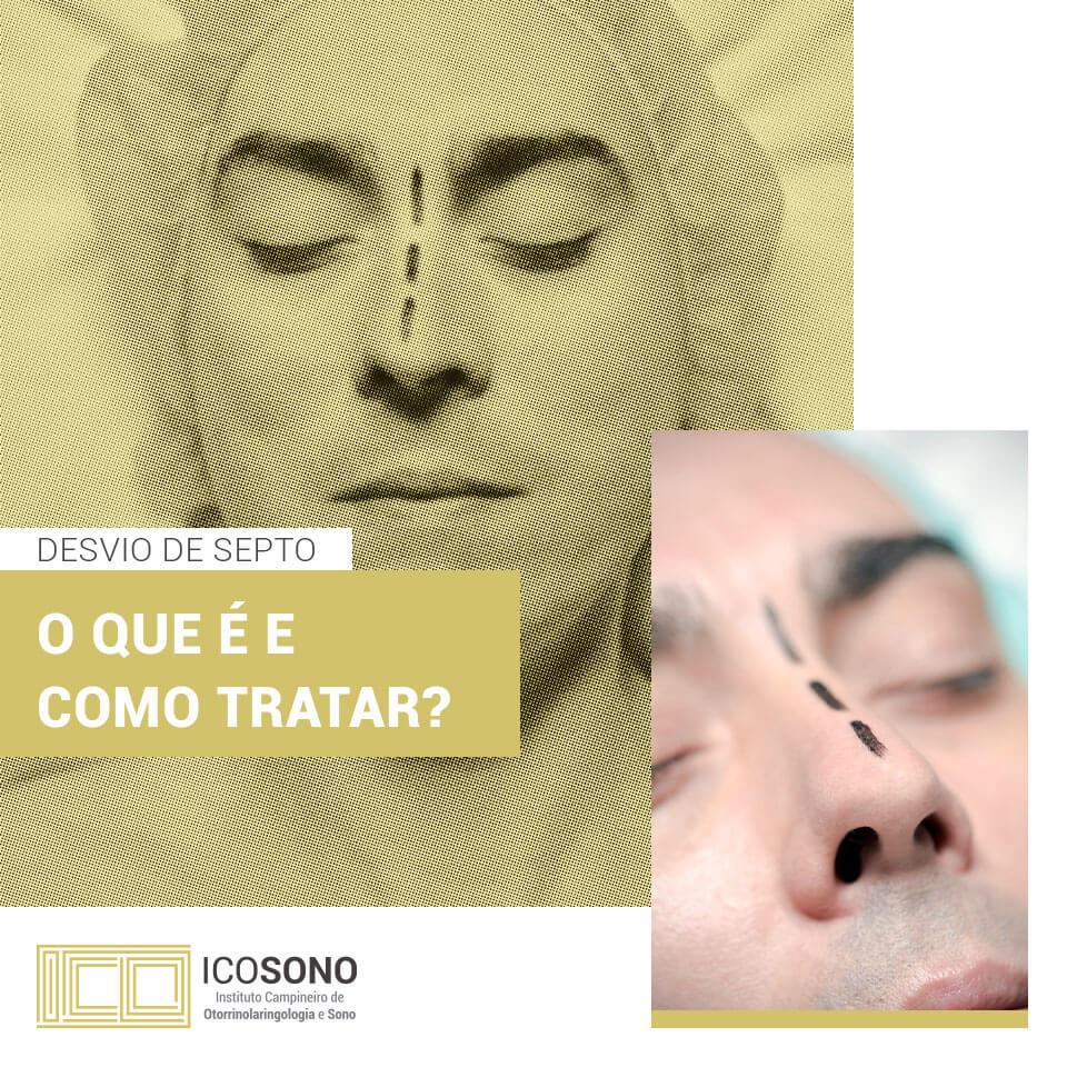 Desvio de Septo: O que é e como tratar? – ICOSONO Instituto Campineiro de Otorrinolaringologia e Sono