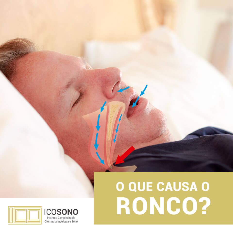 Qual é a Causa do Ronco? – ICOSONO Instituto Campineiro de Otorrinolaringologia e Sono