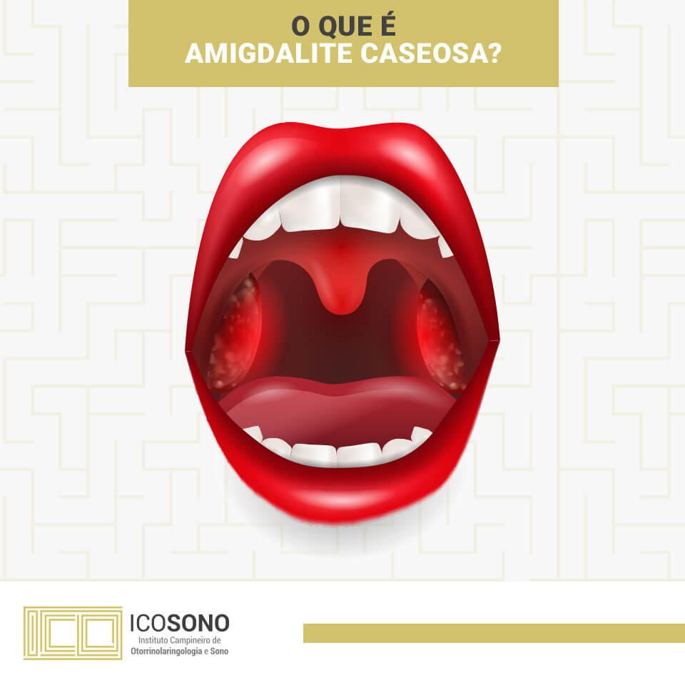 O Que é Amigdalite Caseosa? - ICOSONO Instituto Campineiro de Otorrinolaringologia e Sono
