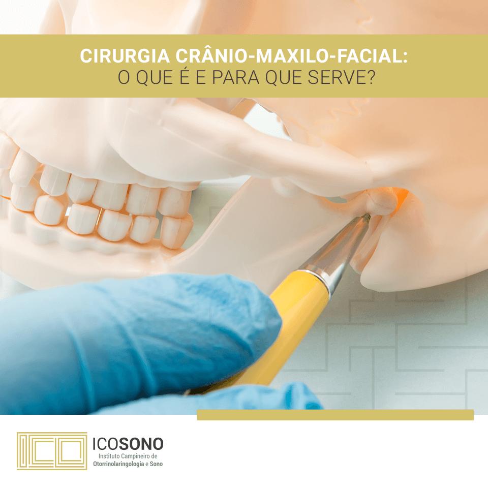 Cirurgia Crânio-Maxilo-Facial: O que é e para o que serve? - ICOSONO Instituto Campineiro de Otorrinolaringologia e Sono